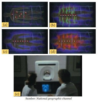 teknologi kemagnetan MRI