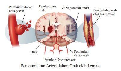 penyubatan arteri dalam otak oleh lemak pada penyakit stroke