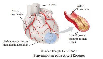 penyubatan pada arteri koroner penyebab jantung koroner